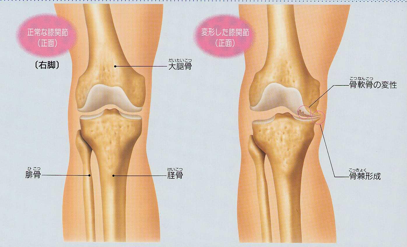 内側 痛い が の 膝