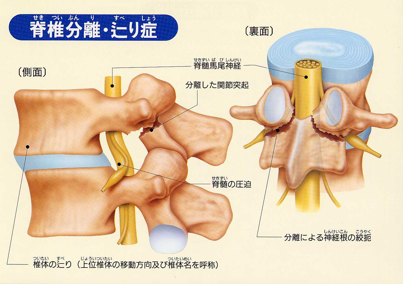 分離 症 脊髄